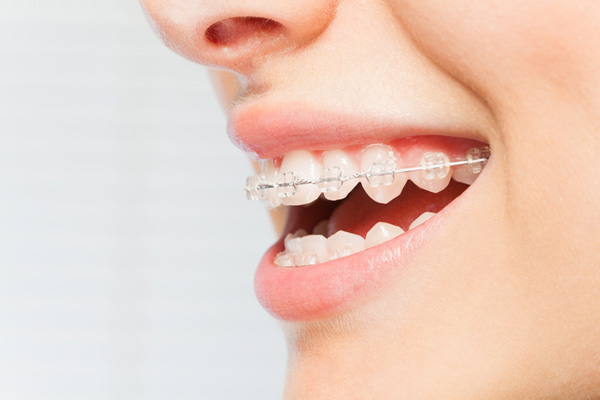 Side view of woman's smile with ceramic braces on her teeth