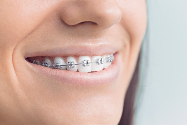 Close up of smiling woman with metal traditional braces at Premier Dental.